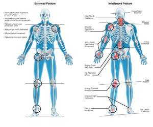 muscle imbalance, pain, shoulder pain, lower back pain, muscle, soreness, tension,headaches